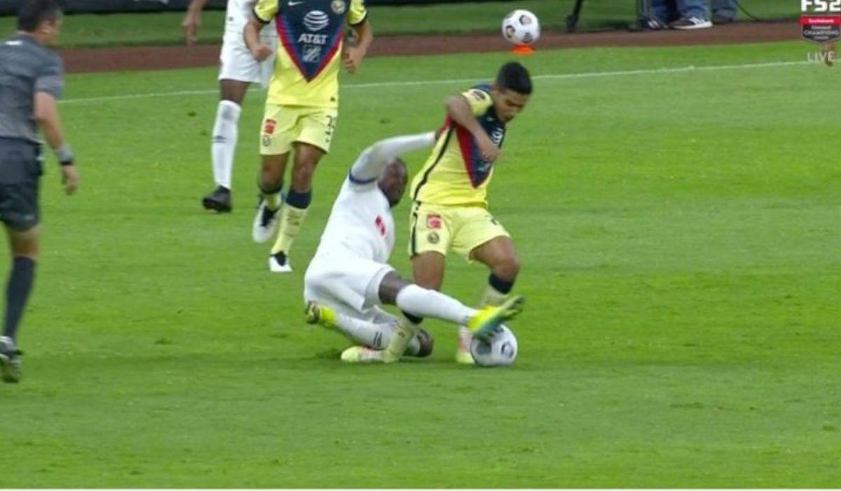 El jugador del américa Jesús López sufrió una aparatosa lesión